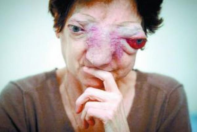 """Francia niega el """"suicidio asistido"""" a una mujer con un tumor incurable"""