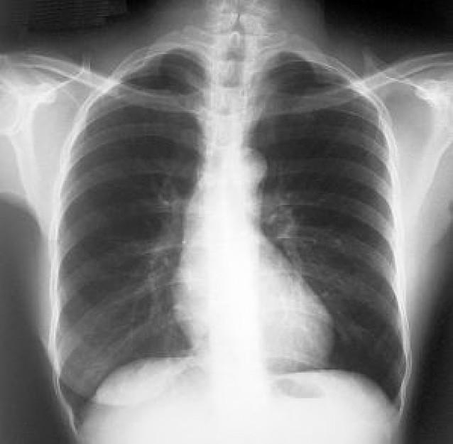 La respiración pulmonar