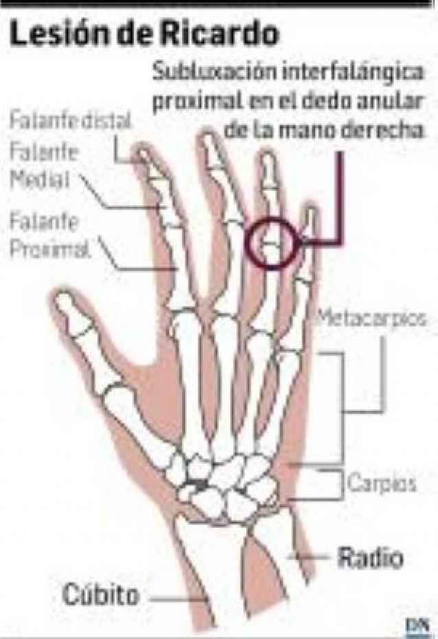Una subluxación en un dedo puede apartar a Ricardo