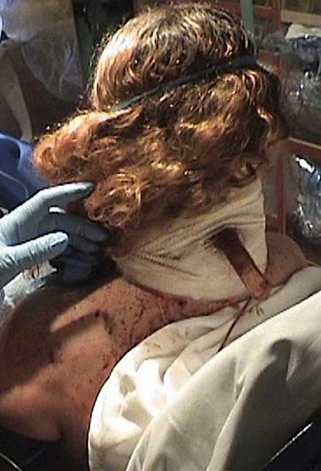 Herida grave una mujer en Vallecas tras recibir una puñalada en la cabeza