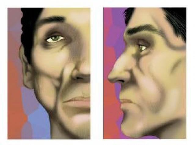 Salud costea la cirugía de lipoatrofia facial, que sufren los enfermos de sida