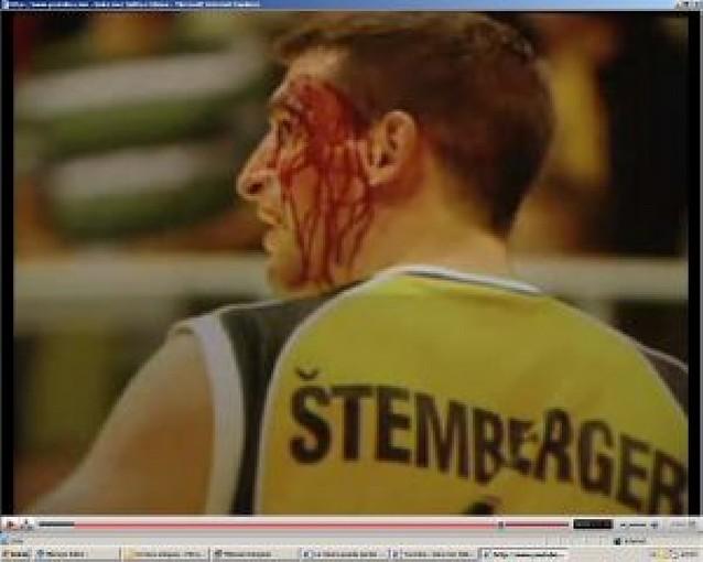 Brutal agresión en la Euroliga