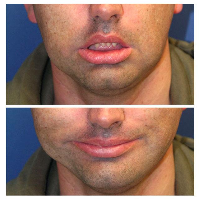 Recupera la sonrisa tras recibir un implante de un injerto de un músculo de su pierna en la cara