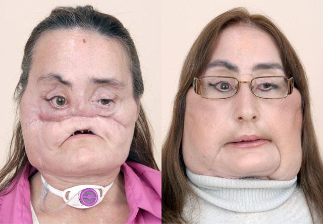 Un hospital de EE UU presenta a una paciente con el 80% del rostro trasplantado